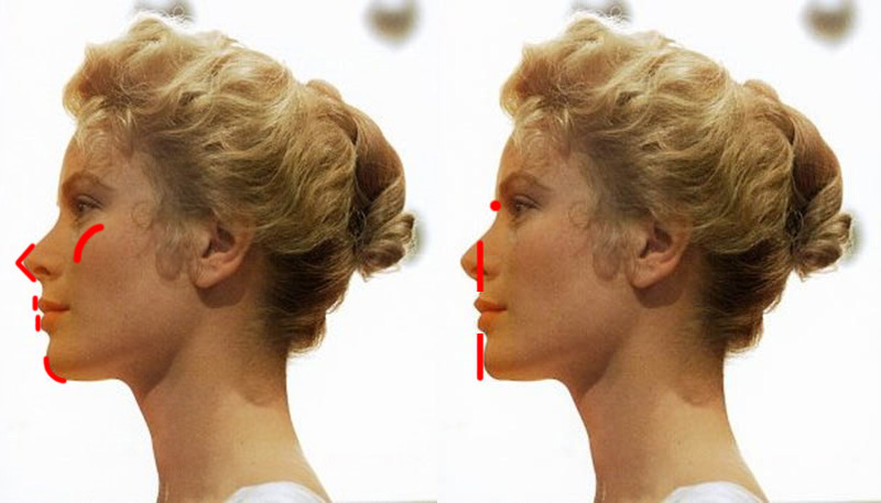 What is forward facial growth and how to measure it? - My