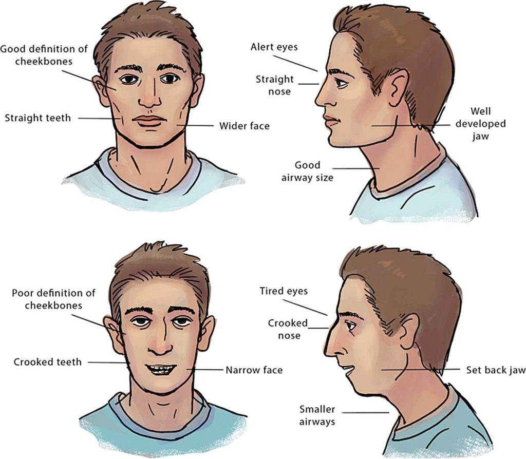 What is improper facial growth or Craniofacial Dystrophy